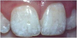 Флюороз зубів - фото