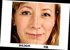 Гіалуронова кислота: до і після - фото