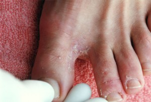 грибок на нозі - фото