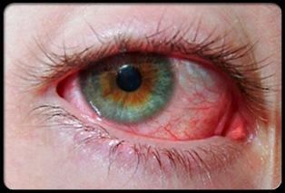 почервоніння очного яблука - фото