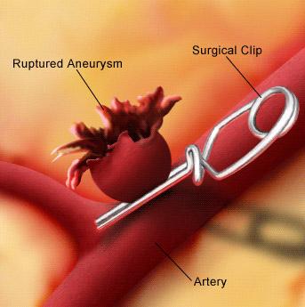 Фото - Аневризма судин голови: від діагнозу до лікування