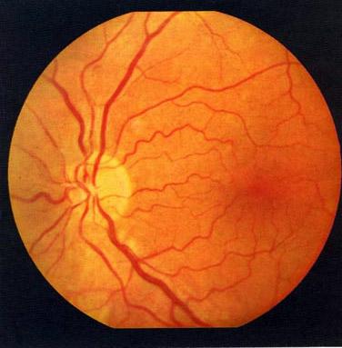 Фото - Ангіопатія очної сітківки: хвороба, яку не можна запускати