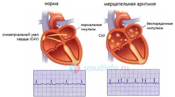 Фото - РЧ-абляція серця: особливості, підготовка, процедура, відновлення після