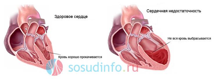 Фото - Астма серцевого походження: ознаки та особливості, чинники виникнення, діагностика, терапія