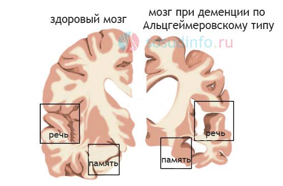 Фото - Деменція: судинна та інші види - ознаки, причини, лікування