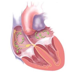 Фото - Фібриляції серця: форми, ознаки, причини, перша допомога та терапія