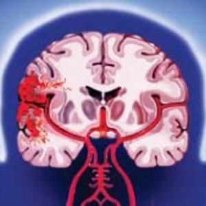 Фото - Геморагічний інсульт головного мозку: види, симптоми, діагностика, лікування, фактори ризику
