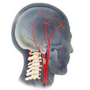 Фото - Гіпоплазія хребетної артерії: ознаки, лікування, наслідки