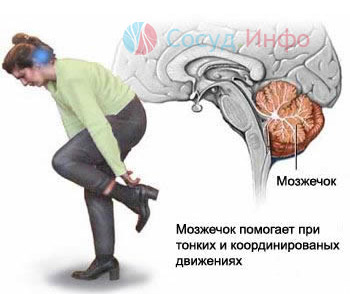Фото - Ішемічний інсульт: причини, ознаки, перша допомога, лікування, ускладнення, прогноз