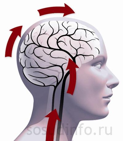 Фото - Енцефалопатія мозку: судинна дисциркуляторная та інші види