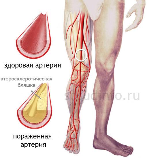 Фото - Атеросклероз судин ніг: виникнення, лікування, прогноз