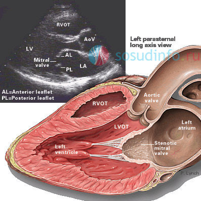 Фото - Кальциноз серця і судин: виникнення, ознаки, діагностика, лікування