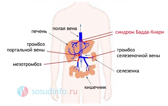 Фото - Гіперемія (повнокров'я): причини, коли це хвороба, локалізації, лікування