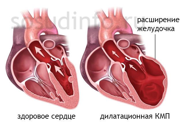 Фото - Дилатація камер серця, аорти - передумови, симптоми, діагностика, лікування