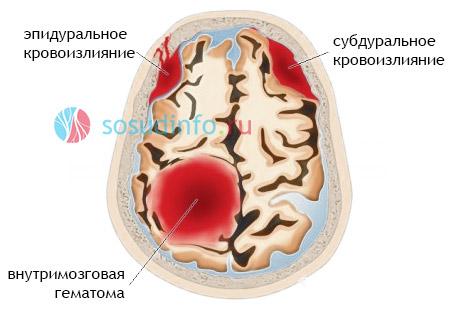Фото - Порушення артеріального кровообігу мозку: форми, ознаки, лікування