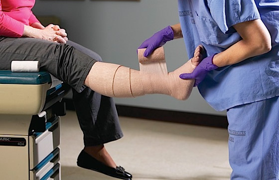 Фото - Посттромбофлебітичний синдром: ознаки, перебіг, діагностика, лікування