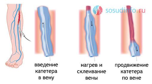 Фото - Радіочастотна облітерація вен при варикозі: показання, процедура, результат, порівняння з «лазером»