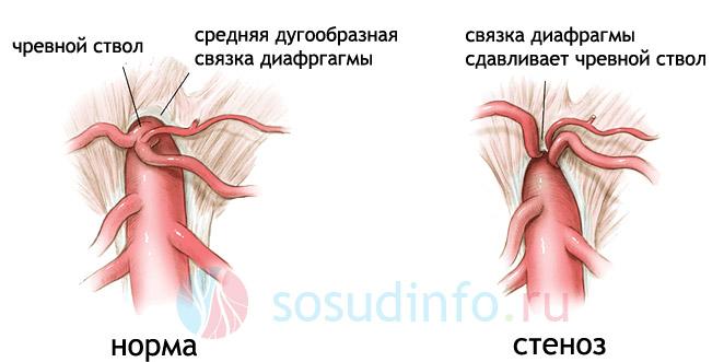 Фото - Синдром компресії черевного стовбура: ознаки, діагностика, лікування