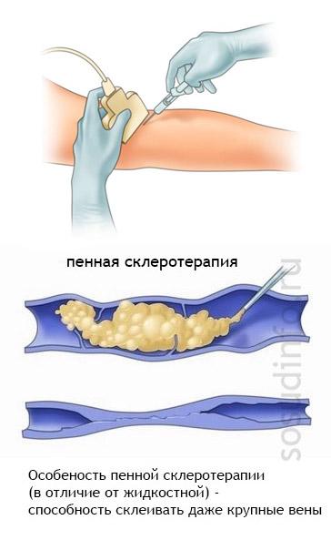 Фото - Склеротерапія вен ніг: ефективний метод для незапущенного варикозу