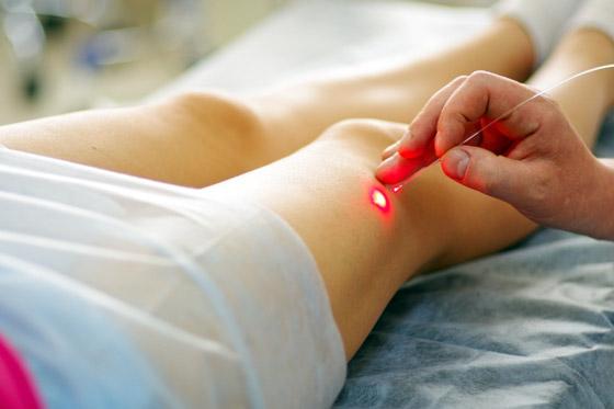 Фото - Судинні зірочки в медицині і способи позбавлення від них
