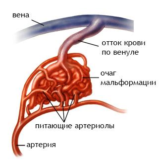 Фото - Судинні мальформації мозку: види, симптоми, діагностика, лікування