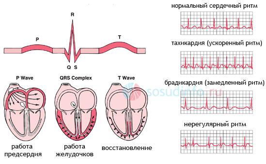 Фото - Аритмія серця: причини, види, ознаки, діагностика, лікування, наслідки