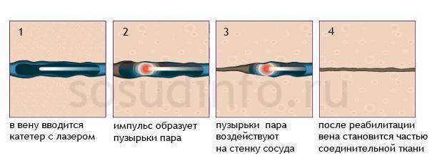 Фото - Лікування варикозу лазером: суть, особливості та переваги методу, рекомендації після процедури