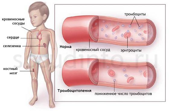 Фото - Тромбоцитопенічна пурпура: фактори ризику, види, розвиток, діагностика, лікування, прогноз