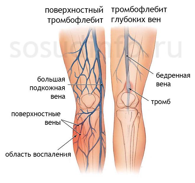 Фото - Тромбофлебіт глибоких і поверхневих вен: гострий і хронічний. Діагностика, лікування, профілактика