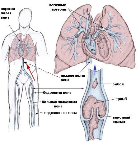 Фото - Тромбоемболія судин легенів - профілактика понад усе!