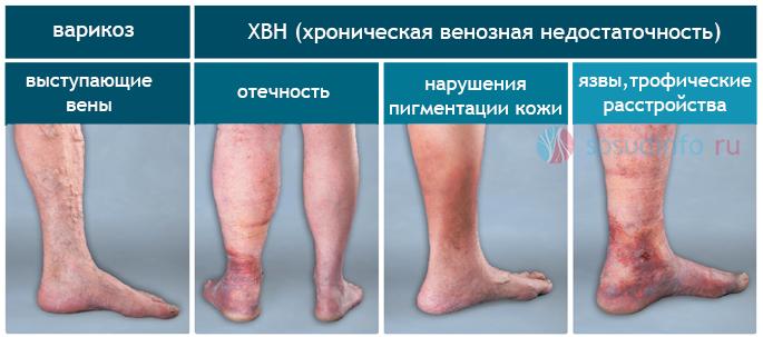 Фото - Венозна недостатність ніг: види, причини, прояви, ускладнення, лікування