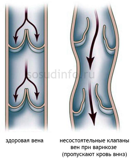 Фото - Варикозне розширення вен ніг: зародження і рішення проблеми